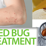 bed-bug-bites-bites 3